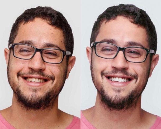 aplicativos-clarear-dentes-android-facetune